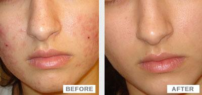 dermology-acne-treatment-results